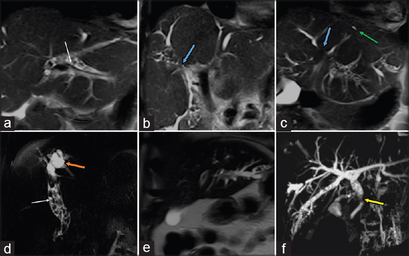 Figure 1: (a-f) reveals the radiological spectrum of oriental cholangiohepatitis in MRI imaging. A - Axial T2 image, B, C & E- coronal T2 images, D- heavily T2 weighted thin slab MRCP image and F- coronal MIP MRCP image. Note the multiple calculi (white arrow) in the intrahepatic as well as extrahepatic biliary tree, intrahepatic strictures (blue arrow) and dilatation in the intrahepatic ducts (orange arrow) and biliary radicals with peripheral pruning (green arrow). Stricture in the CBD is also evident (yellow arrow) with dilatation of the biliary tree