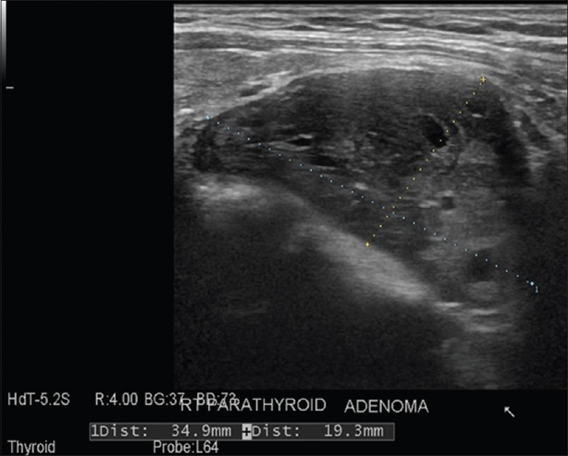 Figure 1: Ultrasonography reveals an elongated, heterogeneous cystic mass measuring 35 mm × 19.3 mm