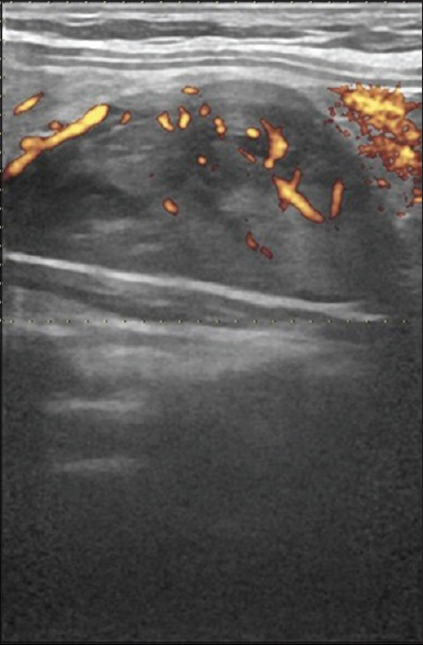 Figure 3: Power Doppler shows the feeding artery arching around the gland and the internal vascularity