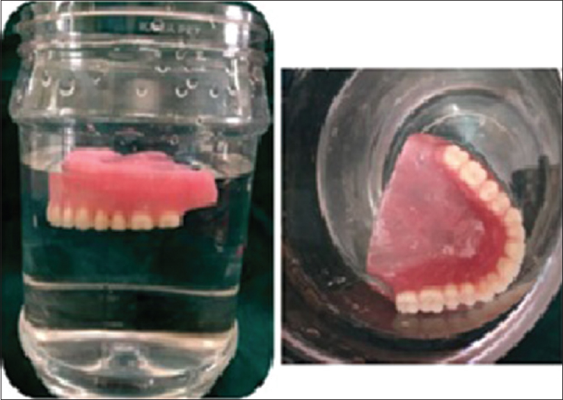 Figure 4: Maxillary hollow denture floating in water
